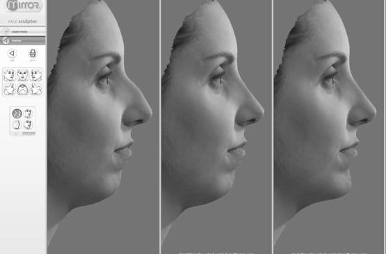 3D-моделирование при ринопластике
