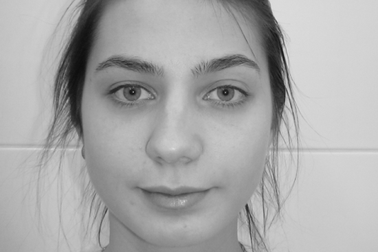 Показания к коррекции широкого носа