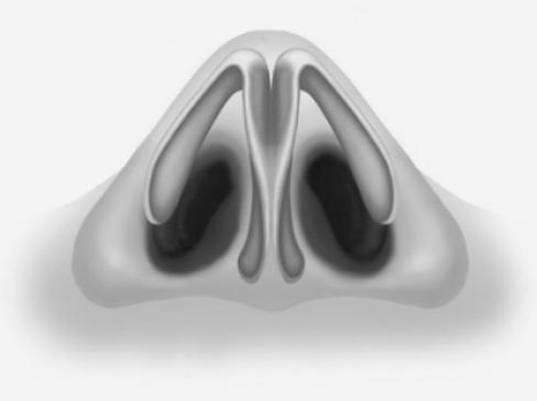 С какими проблемами поможет справиться ринопластика крыльев носа