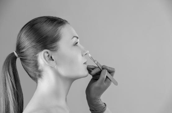 Противопоказания при коррекции крыльев носа